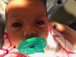 Infant with severe congenital glaucoma